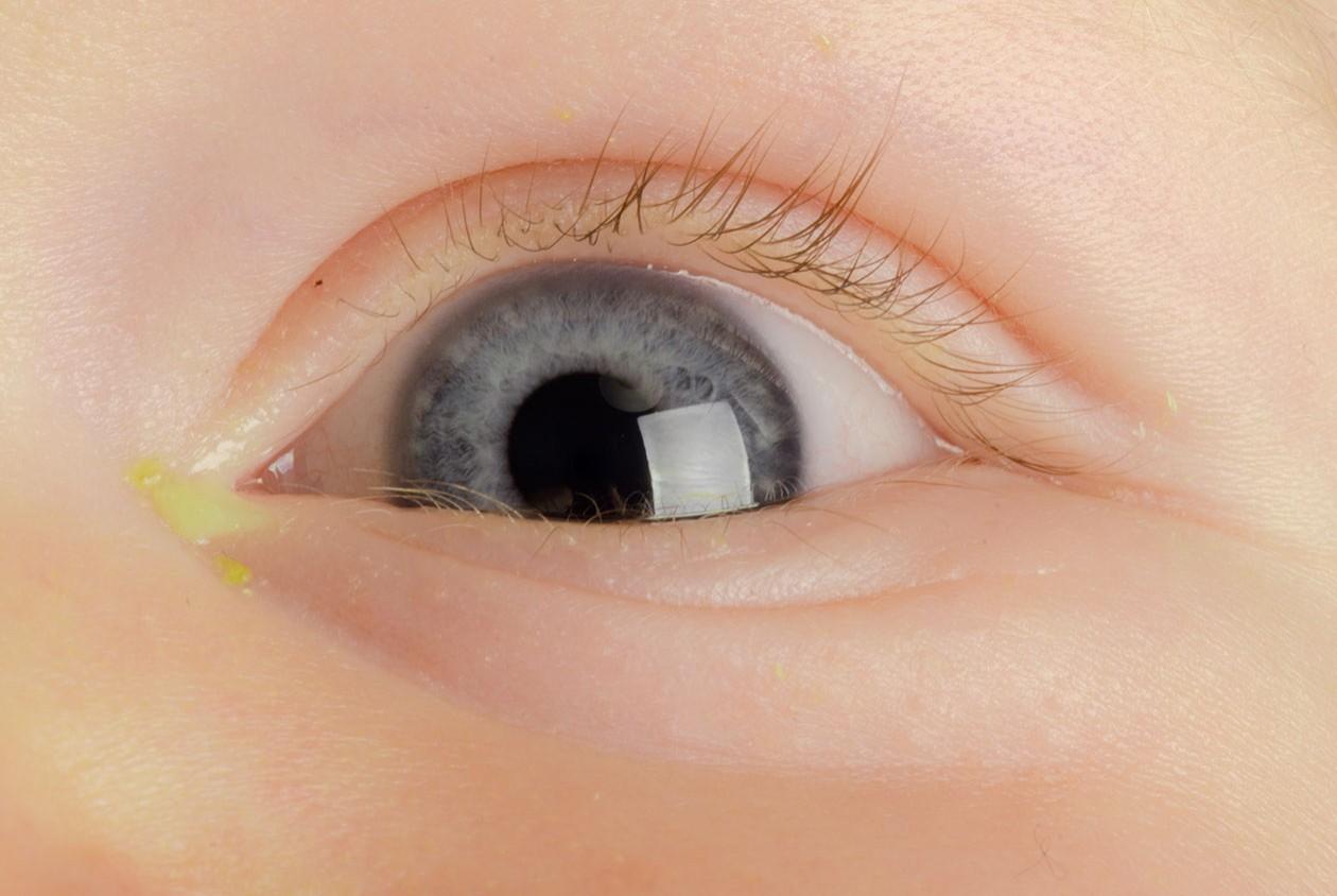 Allergia Rimedi Della Nonna congiuntivite nei bambini: 4 rimedi naturali da conoscere